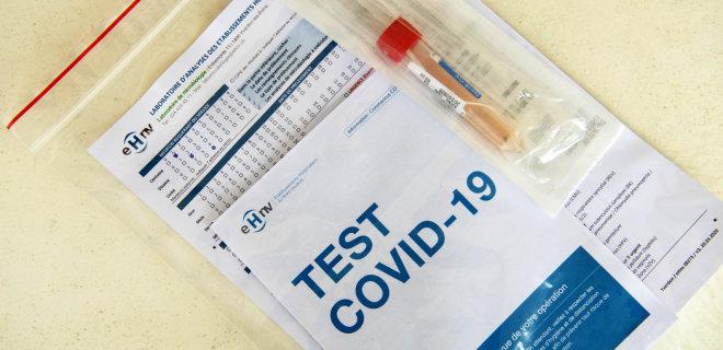 В Харьковской области изготавливали нелегальные тест-системы на COVID-19