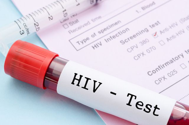 В Николаеве пройдет неделя тестирования на ВИЧ