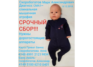 На Николаевщине двухмесячный мальчик нуждается в помощи в борьбе со спинальной мышечной атрофией