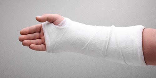 Школьница в Корабельном районе сломала руку на уроке. Учителя бездействовали