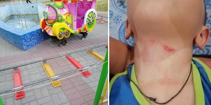 Ребенок травмировался возле ТЦ в Корабельном - владельцы посмеялись маме в лицо