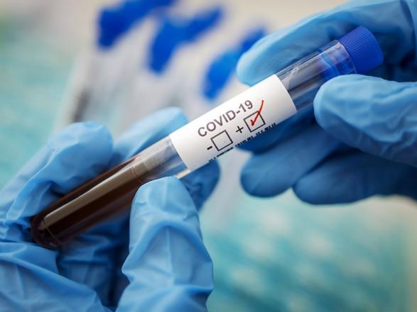 В Украине за сутки 846 новых случаев коронавирусной болезни COVID-19